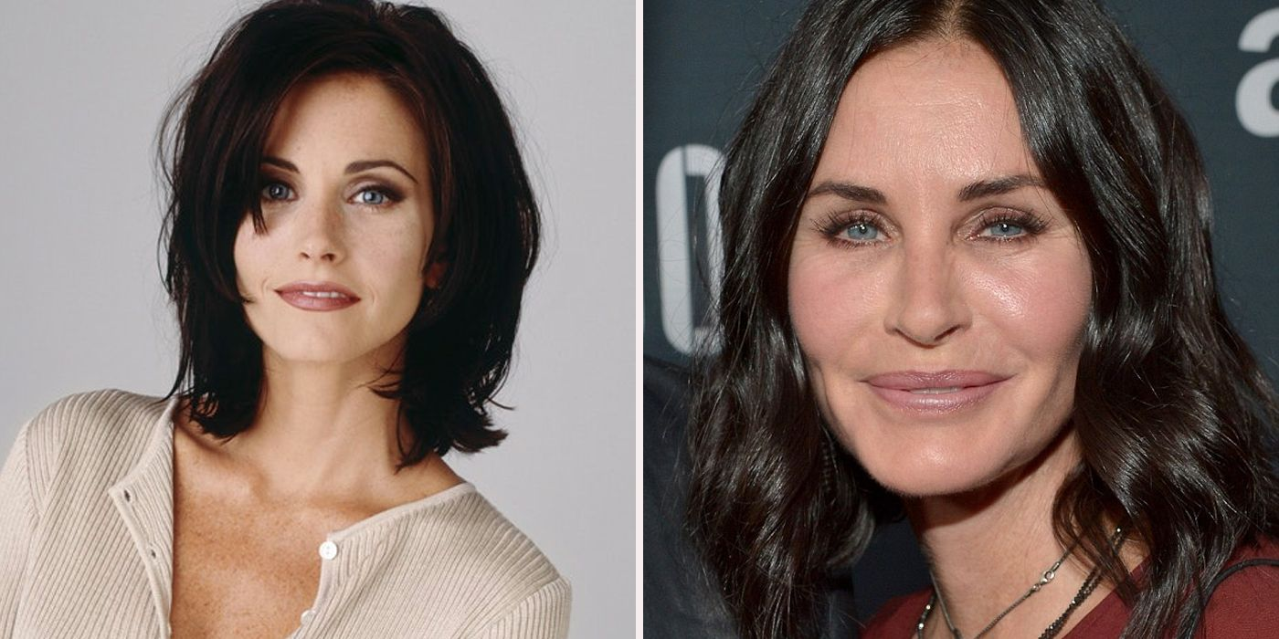 Actors Who Regret Getting Plastic Surgery Screenrant